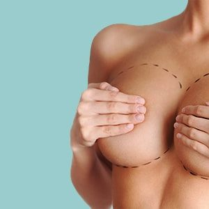 Breast surgery for female
